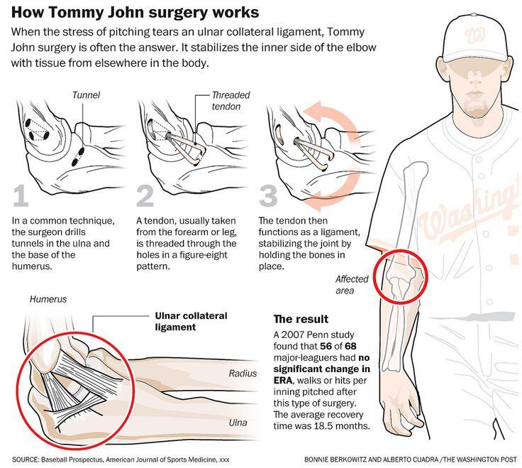 Tommy John Surgery