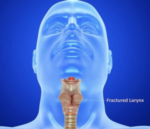 Laryngeal Fracture Pteducator