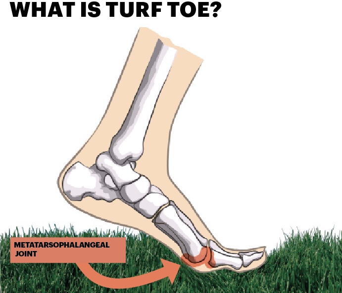C'mon Man...Turf Toe!?! Is That Even A Real Thing?