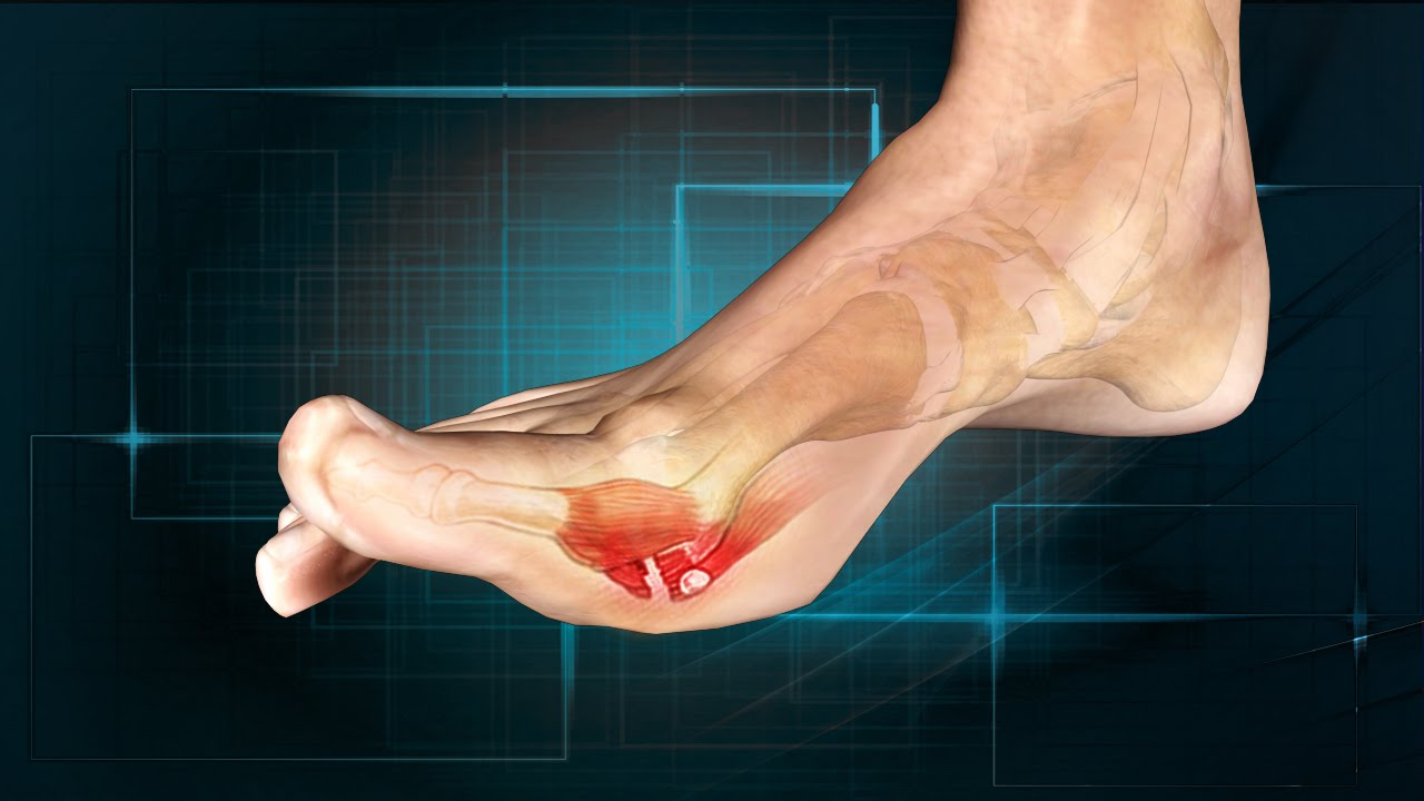 Would You Like To Learn About Toe Sprains?