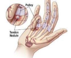 Did You KNow Trigger Finger is a Diagnosis